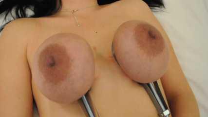 Ölfilter an den Brüsten